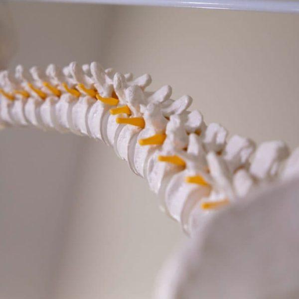Spine Model, Correctness